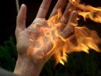 Рука в огне-1
